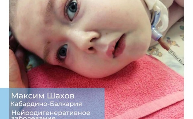 Thumbnail for - Сбор на аппарат ИВЛ для Шахова Максима